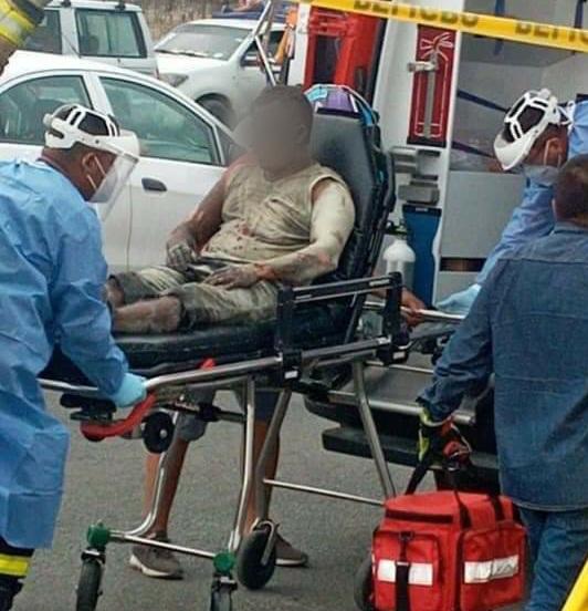 En Manta, Hombre quemado no es transferido porque ningún hospital con esta área lo quiere recibir